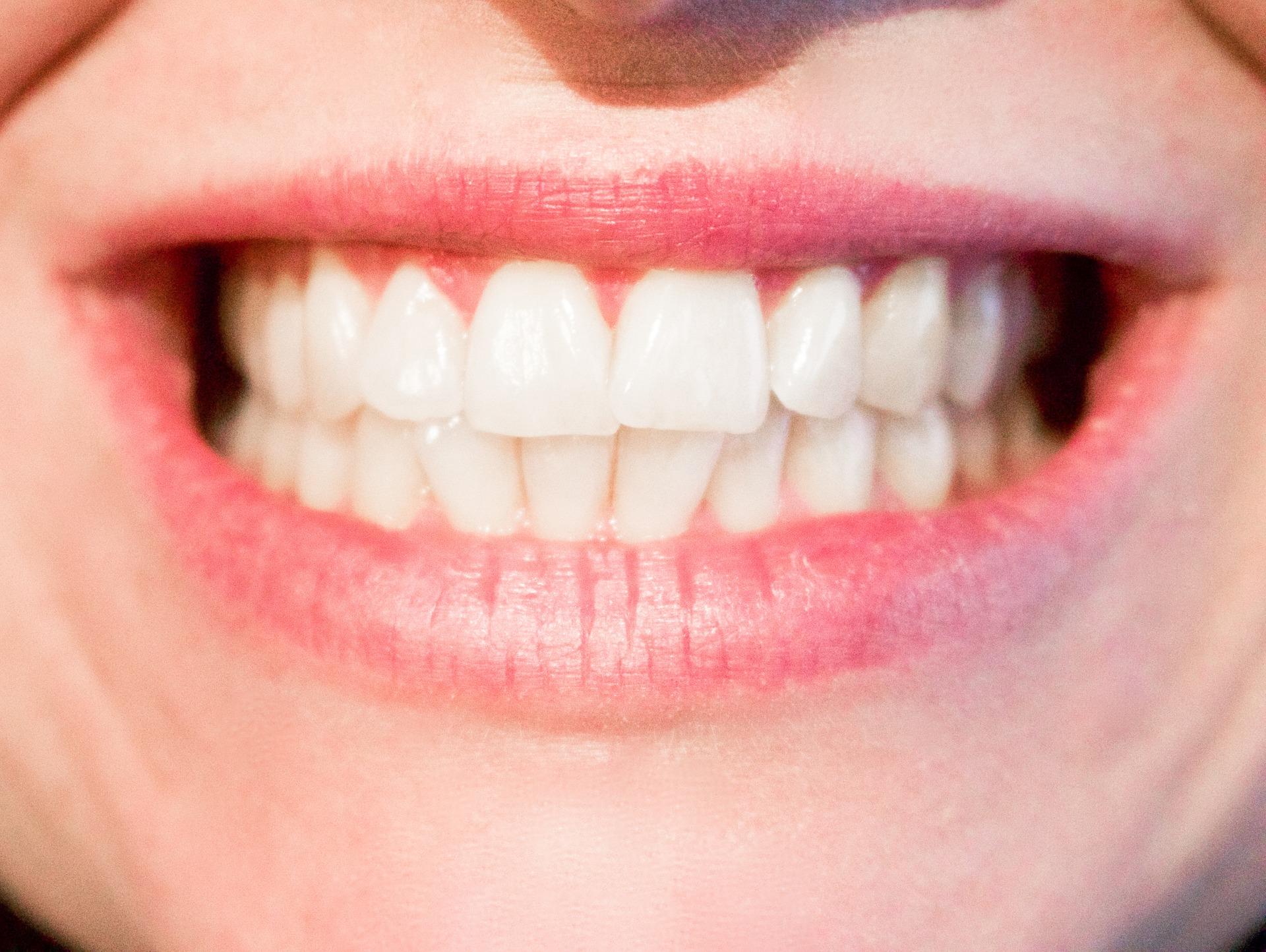 Perfekt weiße Zähne