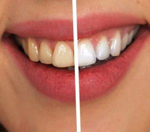 Weiße Zähne Vergleich